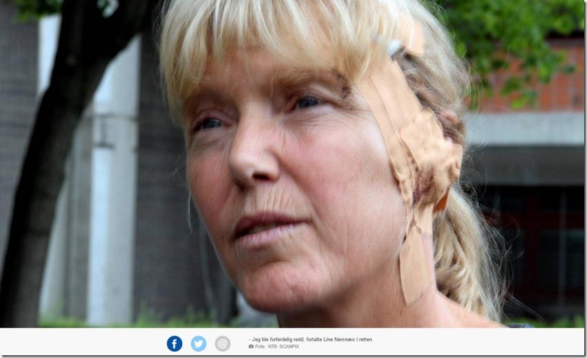 Nersnæs med plaster og bandasje